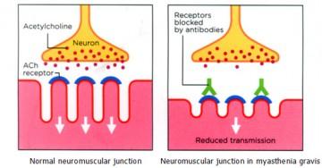 AchR antibodies in the NMJ